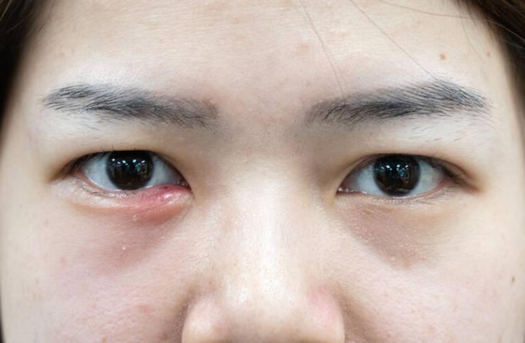 Jęczmień na oku – jak rozpoznać? Jak leczyć? Co to jest?