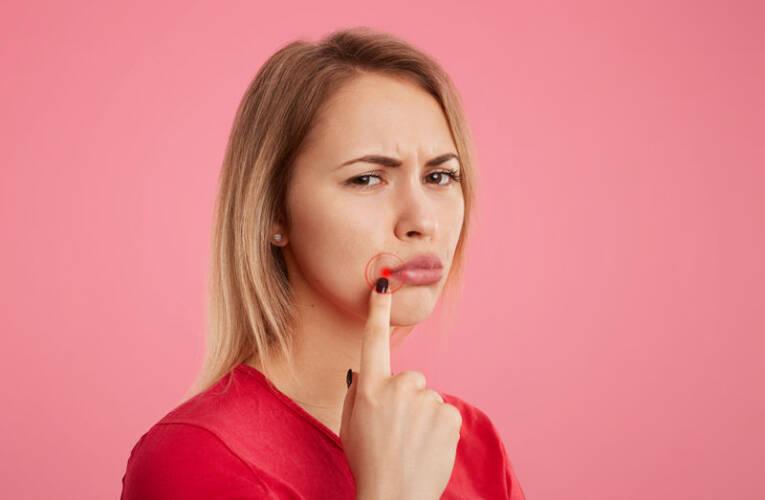 Opryszczka narządów płciowych – jak ją rozpoznać? Jakie są objawy?